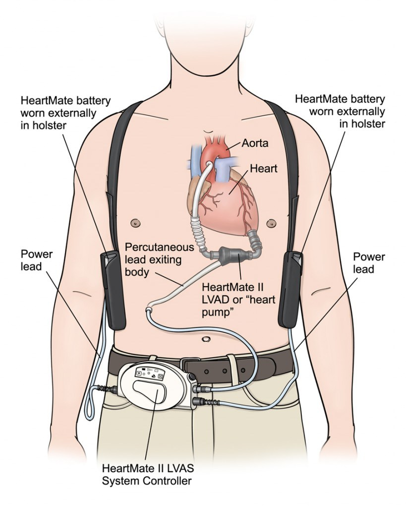 One example of an LVAD system. ( Image )