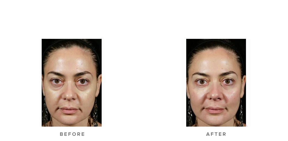 Dermal Filler – Tear troughs & cheek volumisation