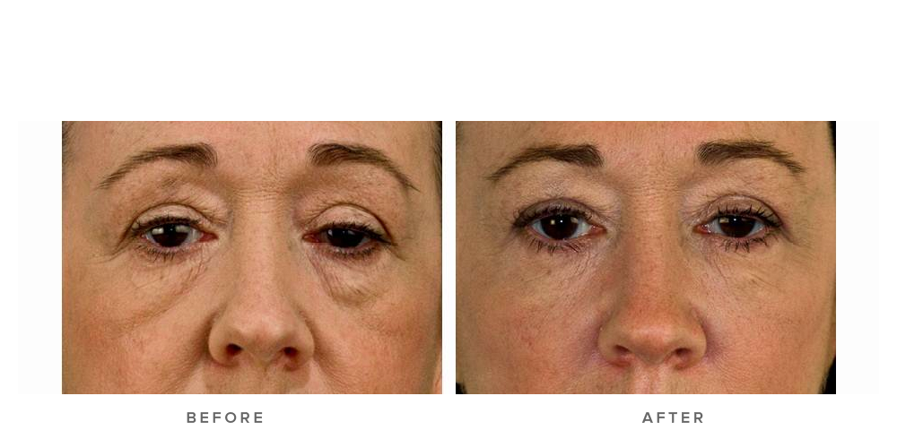 Dermal Filler – Tear troughs