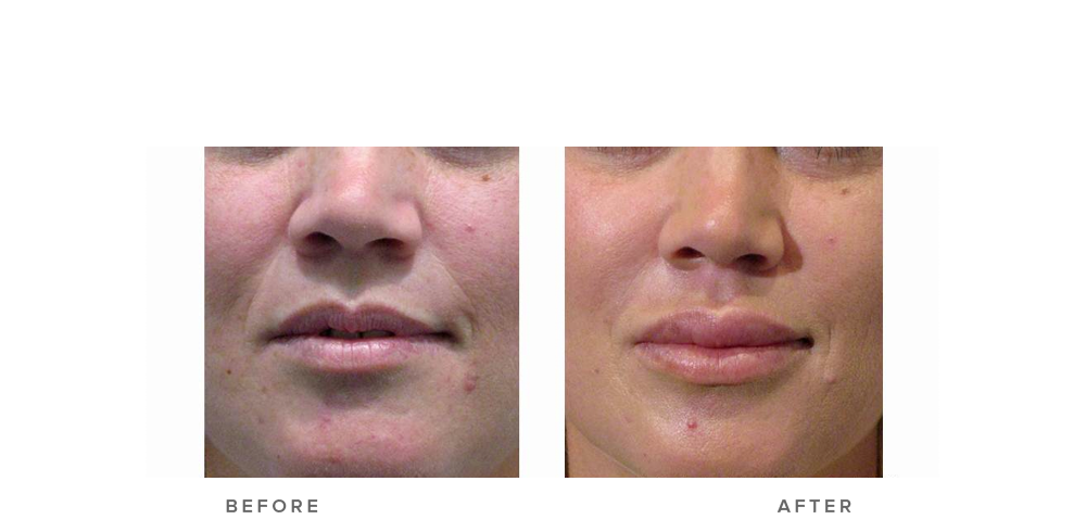 Dermal Filler – Nasolabial folds & lips