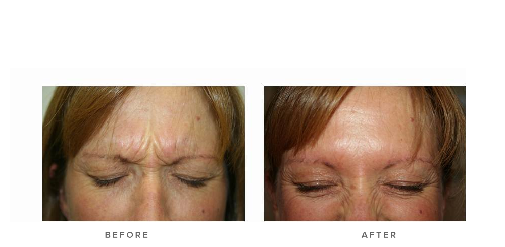 Anti-wrinkle injections – Glabella