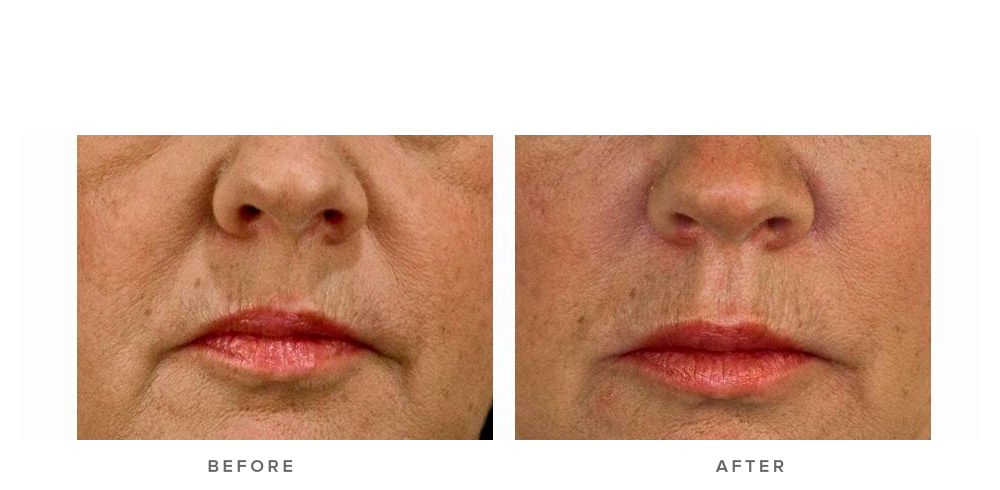 Dermal filler – Nasolabial folds