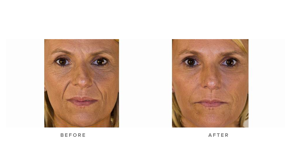 Dermal filler – Glabella, cheek volumisation & nasolabial folds