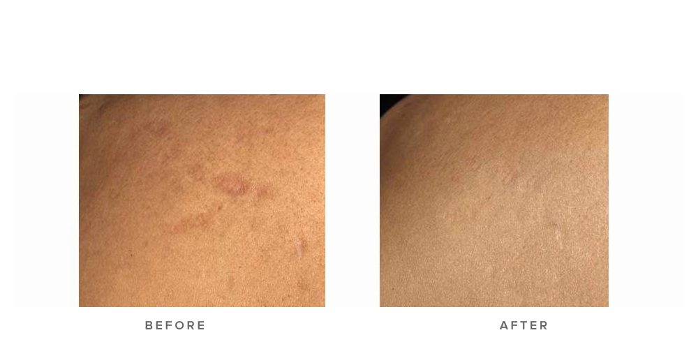 Fraxel re:store Dual Laser – Surgical scar