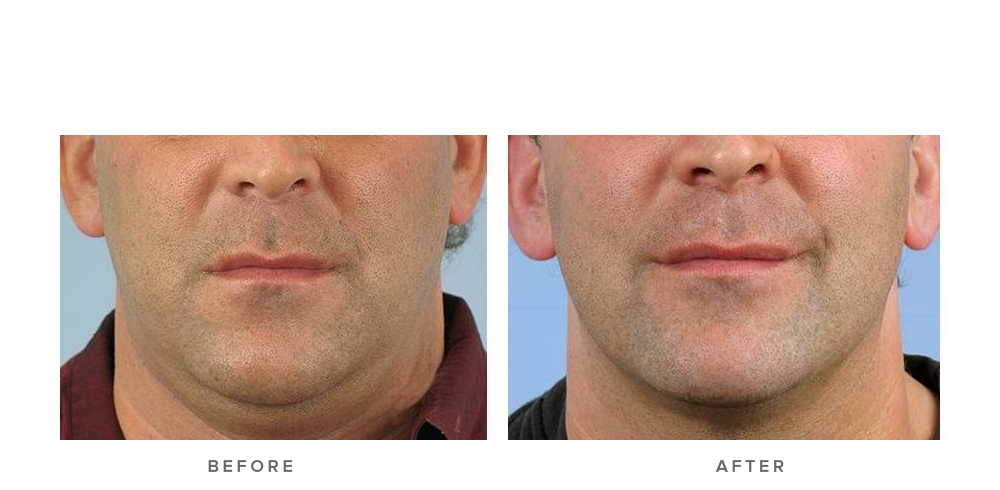 Thermage Face Procedure with Comfort Pulse Technology