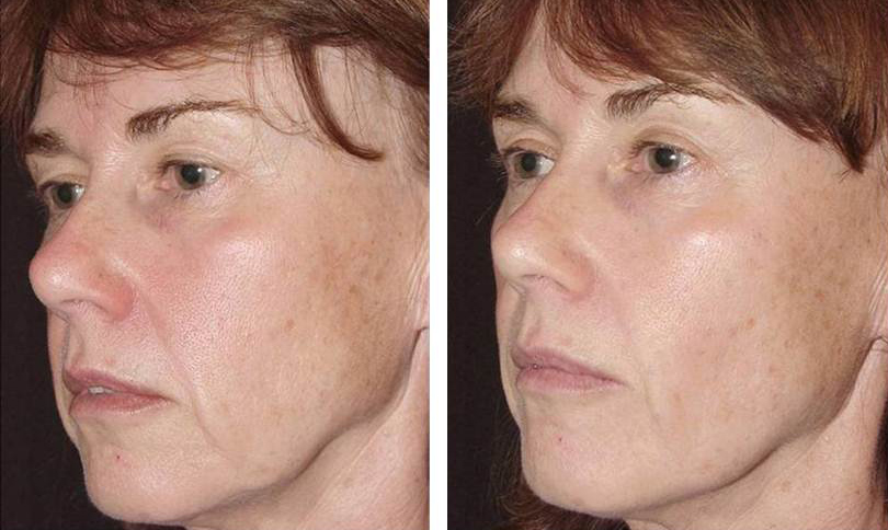 Thermage2-before-and-after.jpg