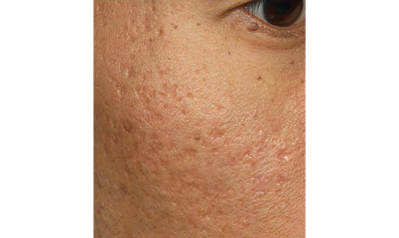 Acne_Scarring_BEFORE