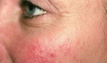 Facial Redness – Before
