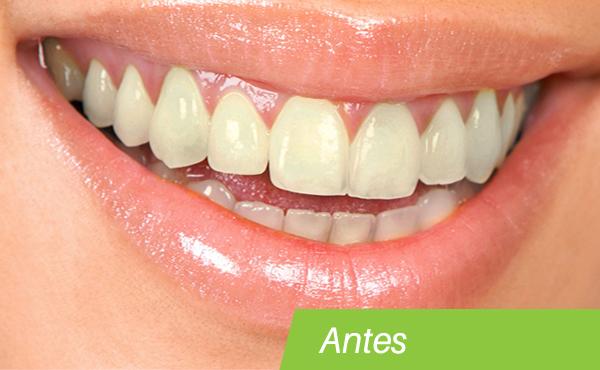 teeth-whitening-before.jpg