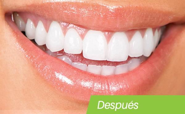 teeth-whitening-after.jpg