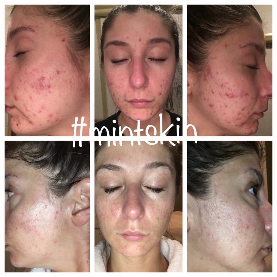 skin trans.jpg