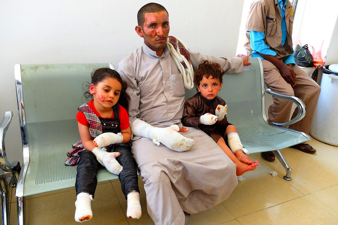Aden, Al-Jumhouriya hospital.  Thousands have been injured or wounded across the country. This family suffered second and third degree burns. The hospitals are struggling to cope with the numbers of patients. Supplies are short.  CC BY-NC-ND/ICRC/S. Ammane
