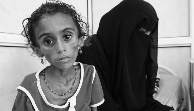 Jamila sits with her mother, two days before succumbing to intestinal worms linked to malnutrition. Like many children in Hodeida, she needed to receive specialized medical care in Sanaa, but the cost of transferring her to the capital was too much for her family. ICRC/Ralph El Hage
