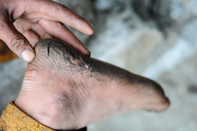 Mariam's foot
