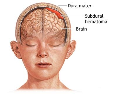 Subdural hematomas are blood on the brain. This kind of brain bleed can result from a nursing home fall.