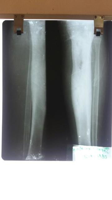 X-ray of both lower legs