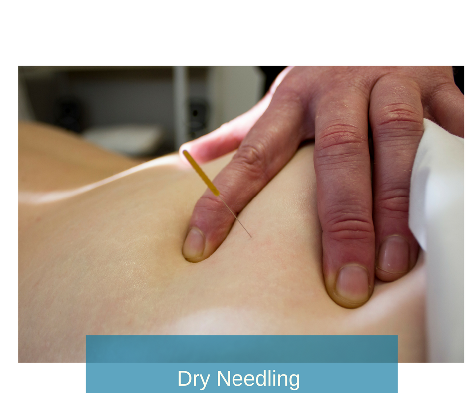 Dry Needling  - this technique specifically targets trigger points and high tension muscles