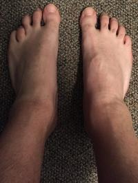 Jason's Feet after the Lightning Process