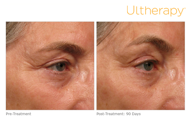 Ultherapy — Derma Medical Spa