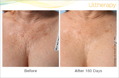 ultherapy_018p-d_beforeandafter-180day_1tx_chest.jpg