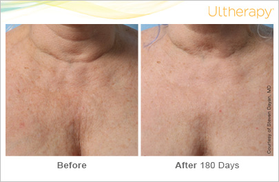 ultherapy_039gmj_beforeandafter-180day_1tx_chest.jpg