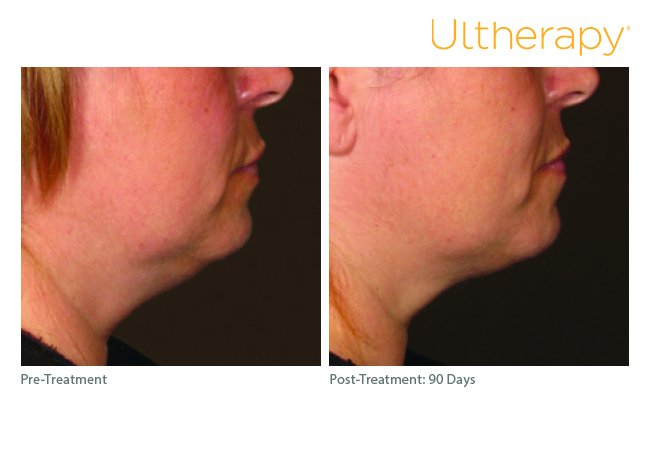 ultherapy_0254k-s_before-90daysafter_lower2_low-res.jpg