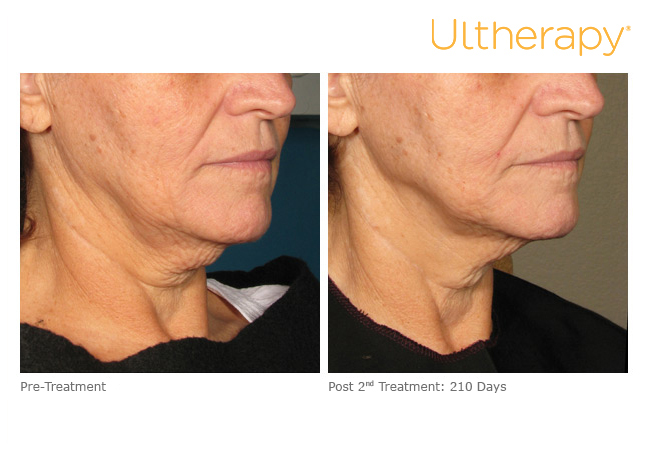 ultherapy-000l-008y_before-210daysafter-2tx_lower.jpg