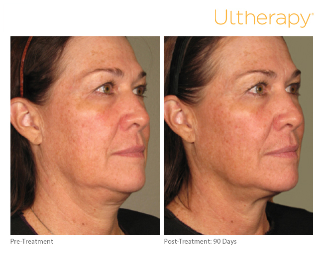 ultherapy-0236l-r_before-90daysafter_full.jpg