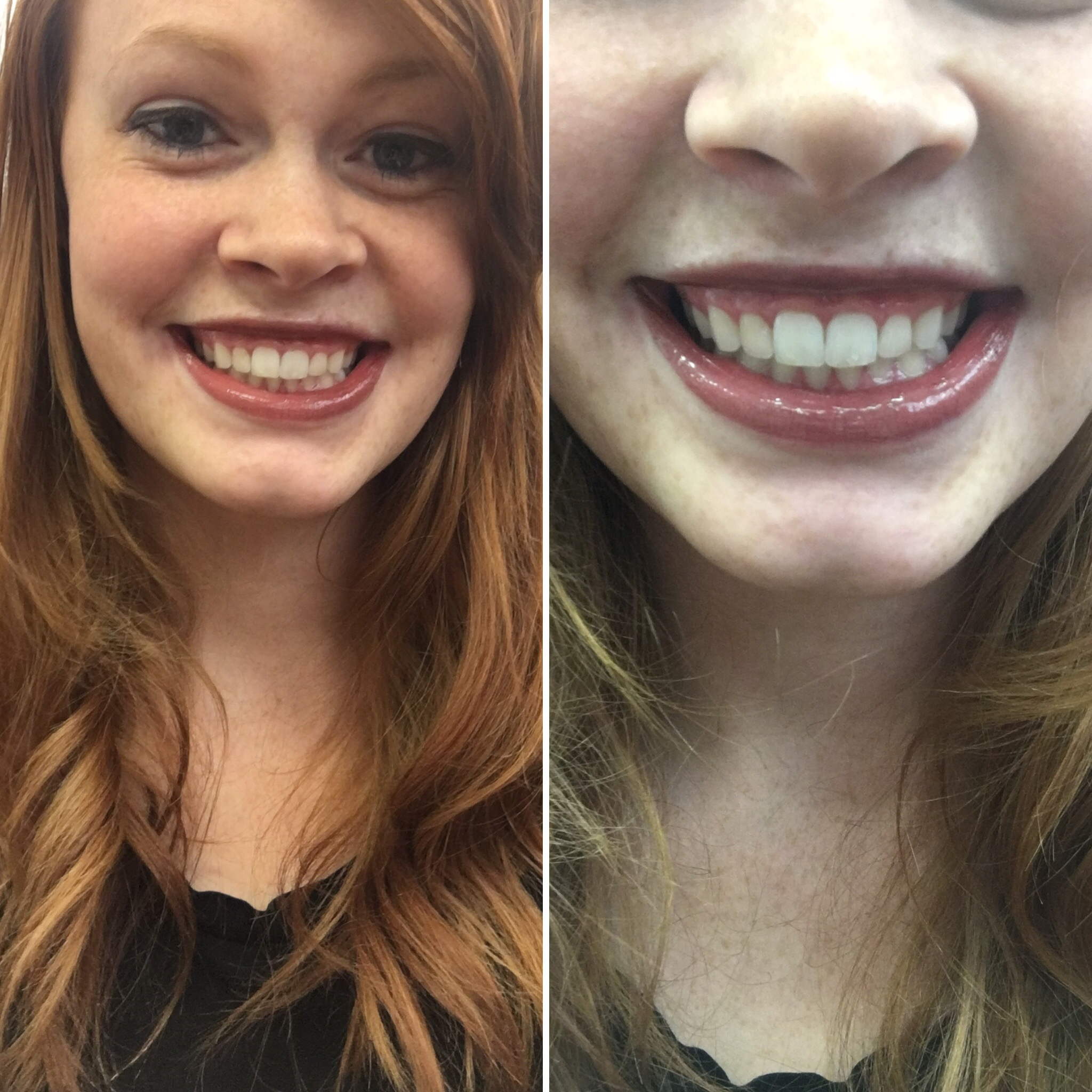 Left Side: before dentist  Right Side: after