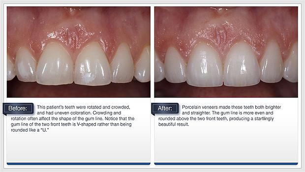 Porcelain Dental Veneers Dental Services Dr Paul Harbottle
