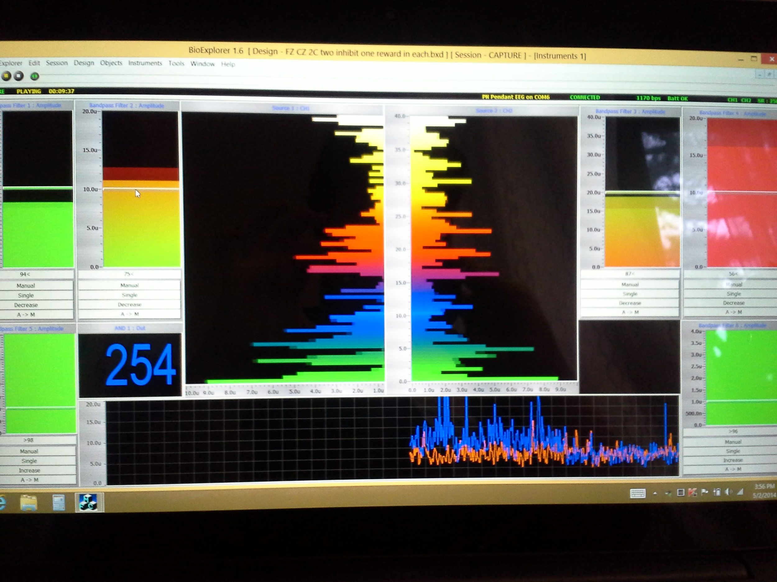 EEG brain training at work.