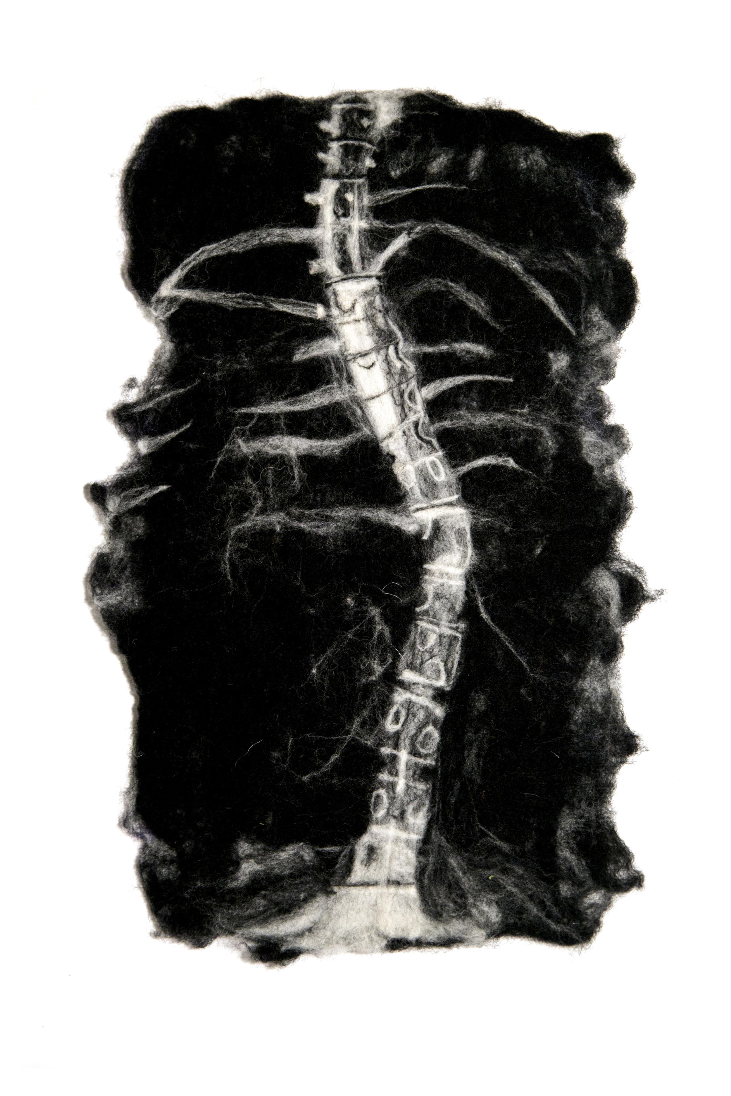"""scoliosis. 2013.merino wool, 16"""" x 10.5"""""""