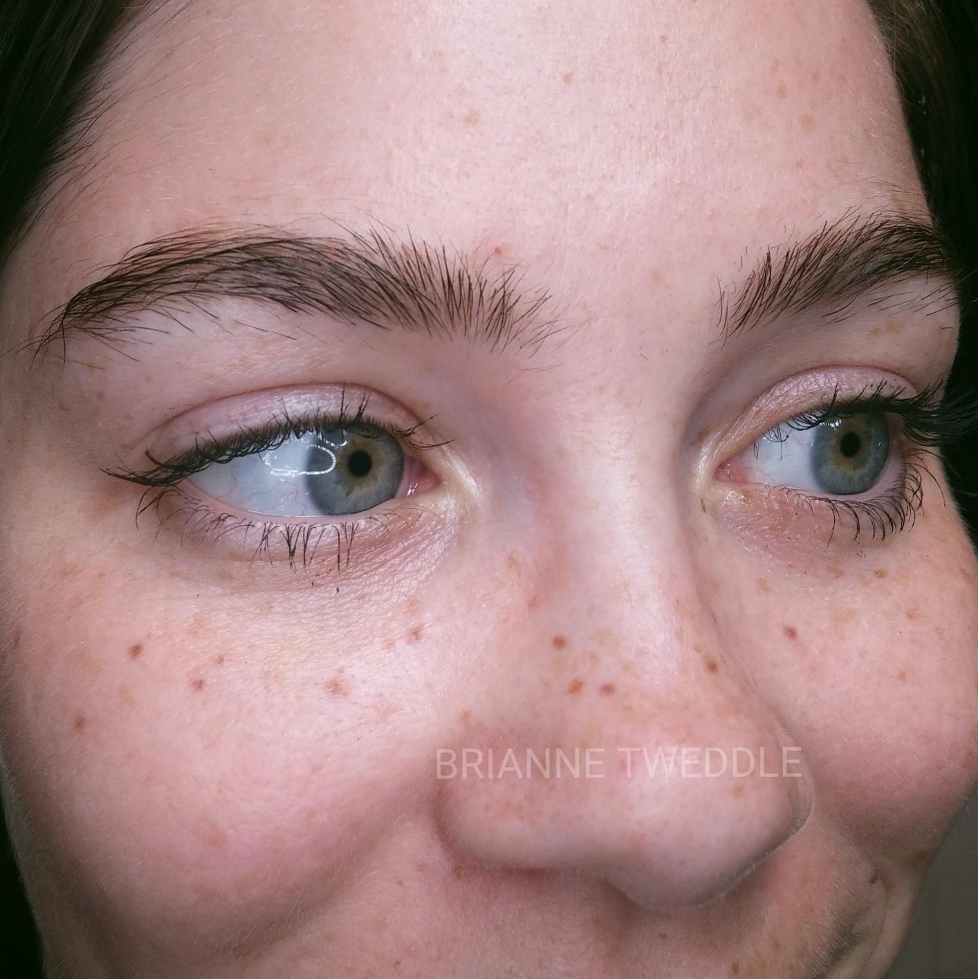 Healed freckles!
