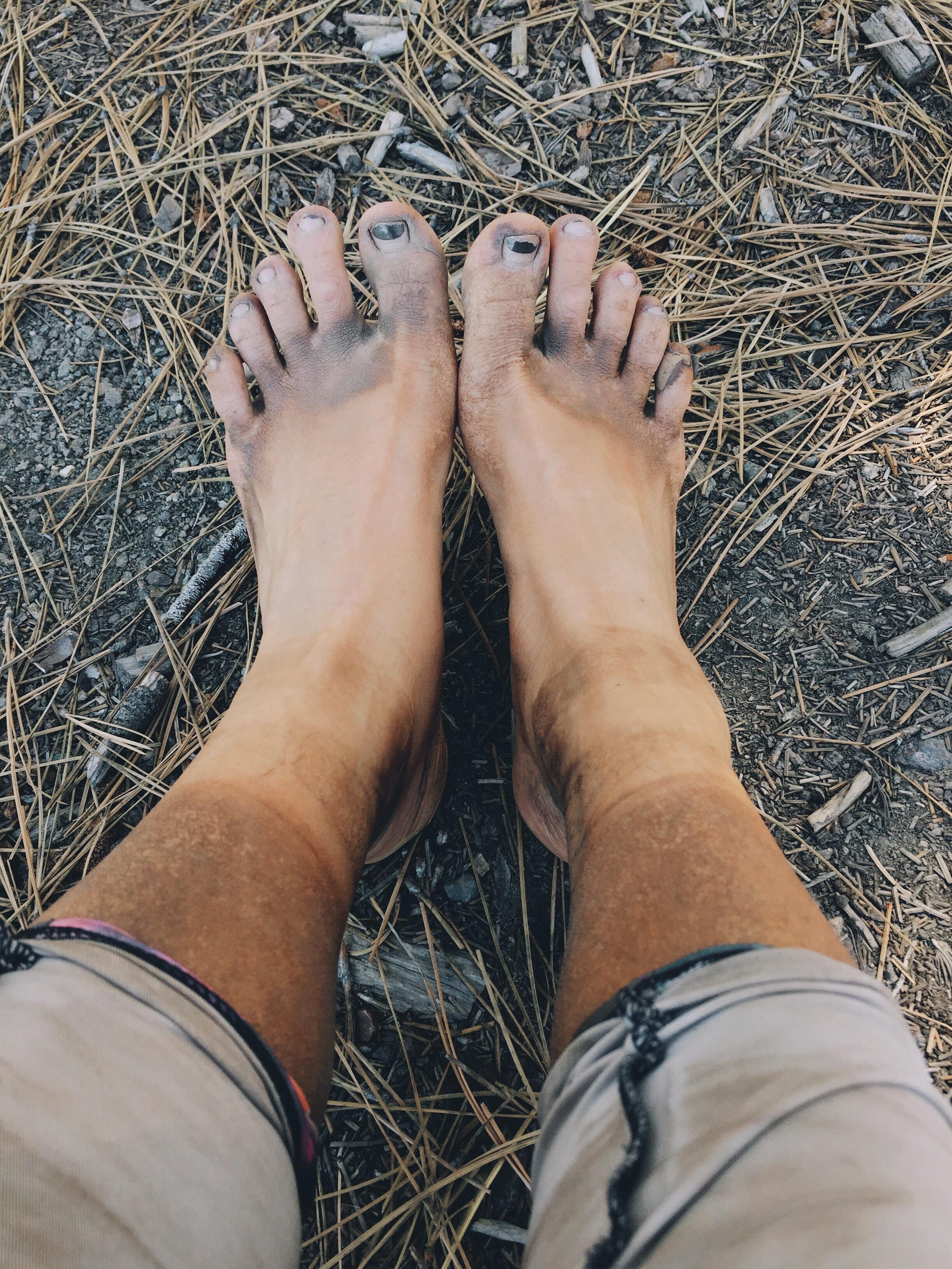 My feet so dirty! Six days no shower.