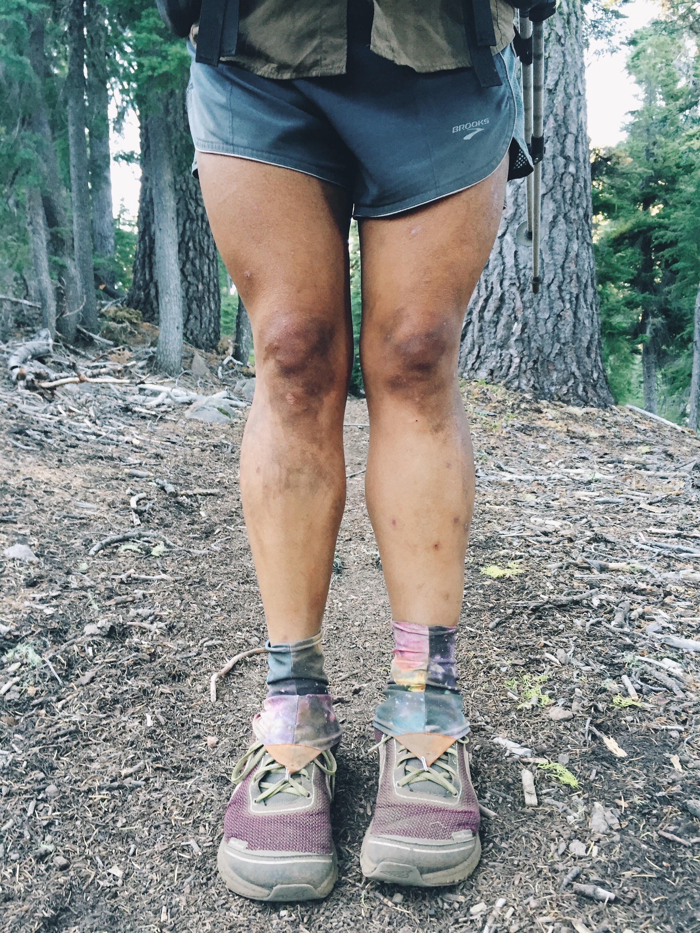 Left leg swelling.