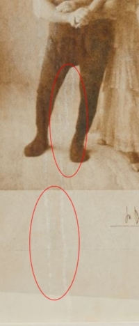Before Treatment (Detail)