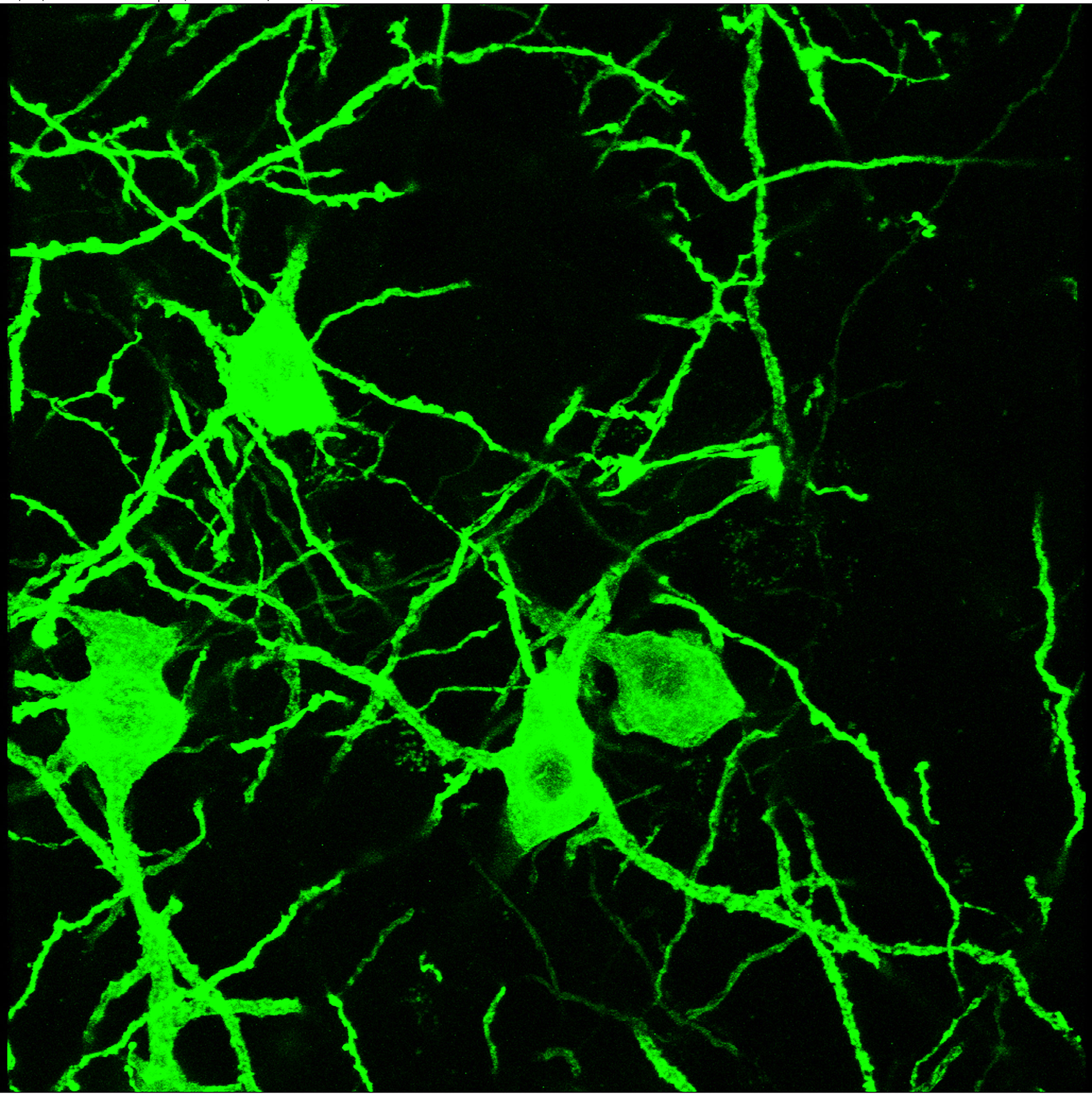 Midbrain neurons expressing ChR2-eYFP (40x confocal image)