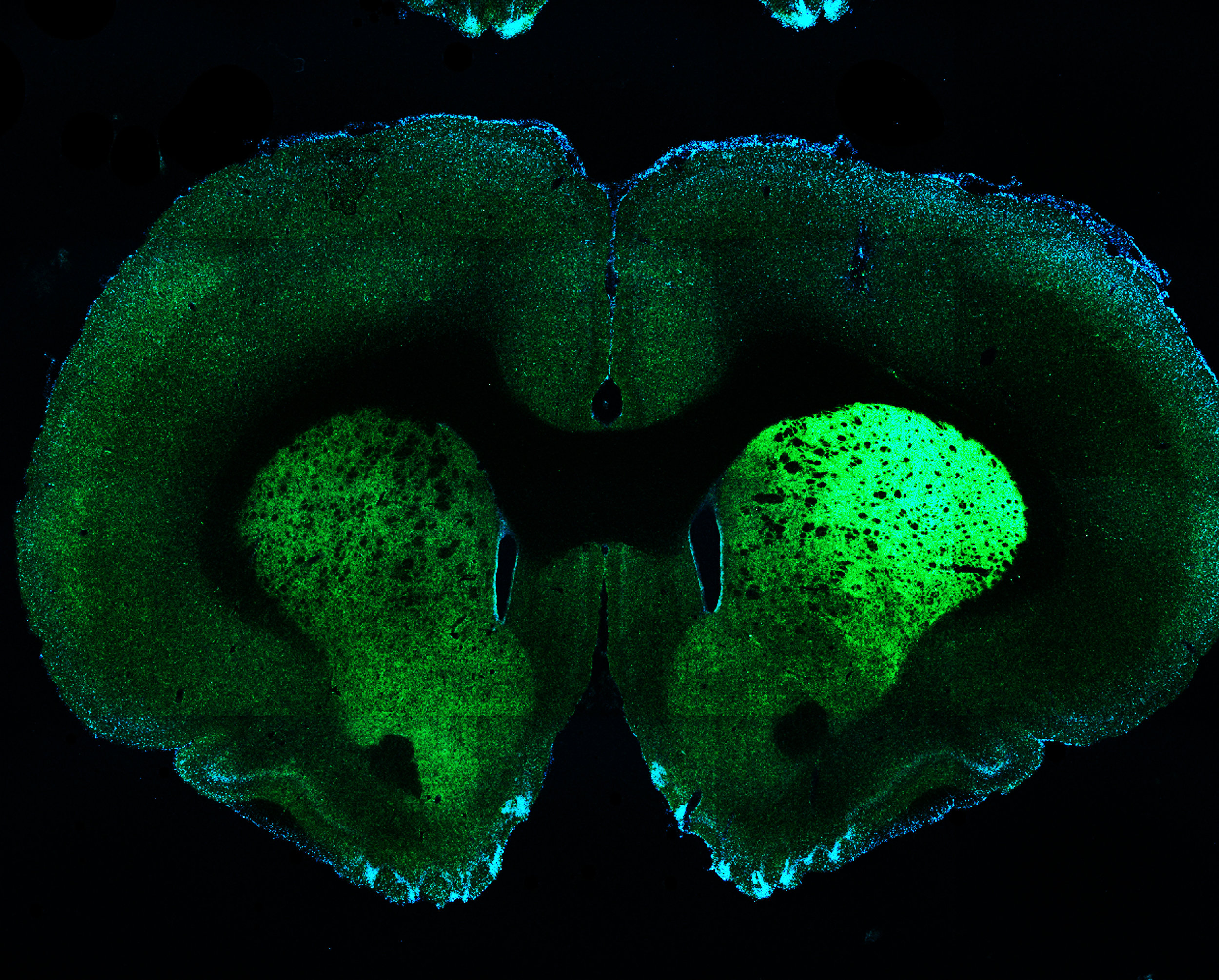 Whole brain coronal section image. Axon terminals from neurons in the substantia nigra in the dorsal striatum (green, left side).