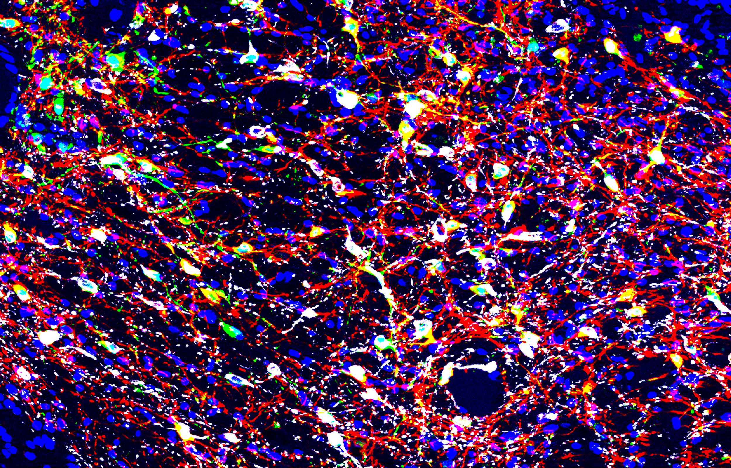 Image of the ventral tegmental area in the midbrain. Neurons (blue) were co-transfected with viruses containing GCaMP6f (green) and ChrimsonR-tdTomato (red). In this preparation, they overlap with neurons stained for tyrosine hydroxylase (white).