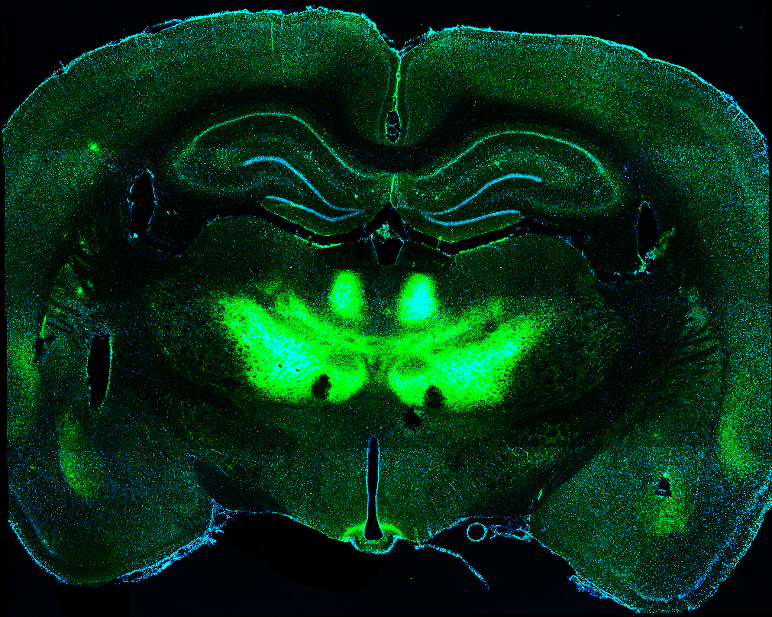 Whole brain coronal section image. Axon terminals from neurons in the orbitofrontal cortex expressing ChR2-eYFP (green) in the thalamus and basolateral amygdala.
