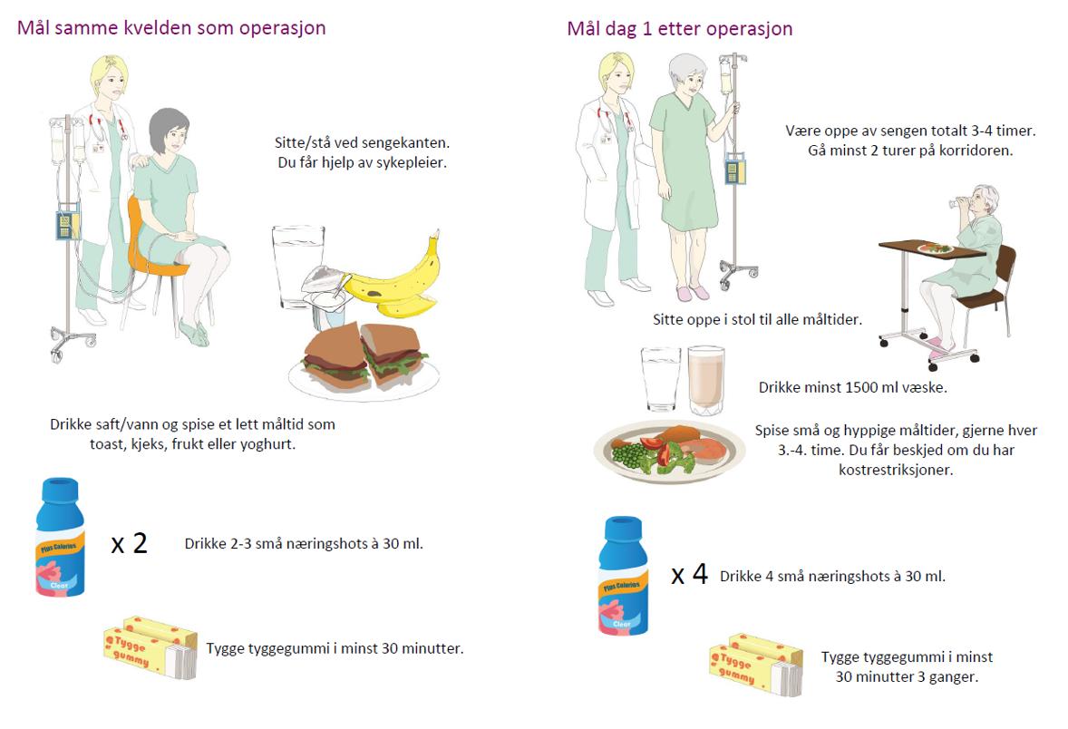 En illustrering for tilrettelagt pasientinformasjon