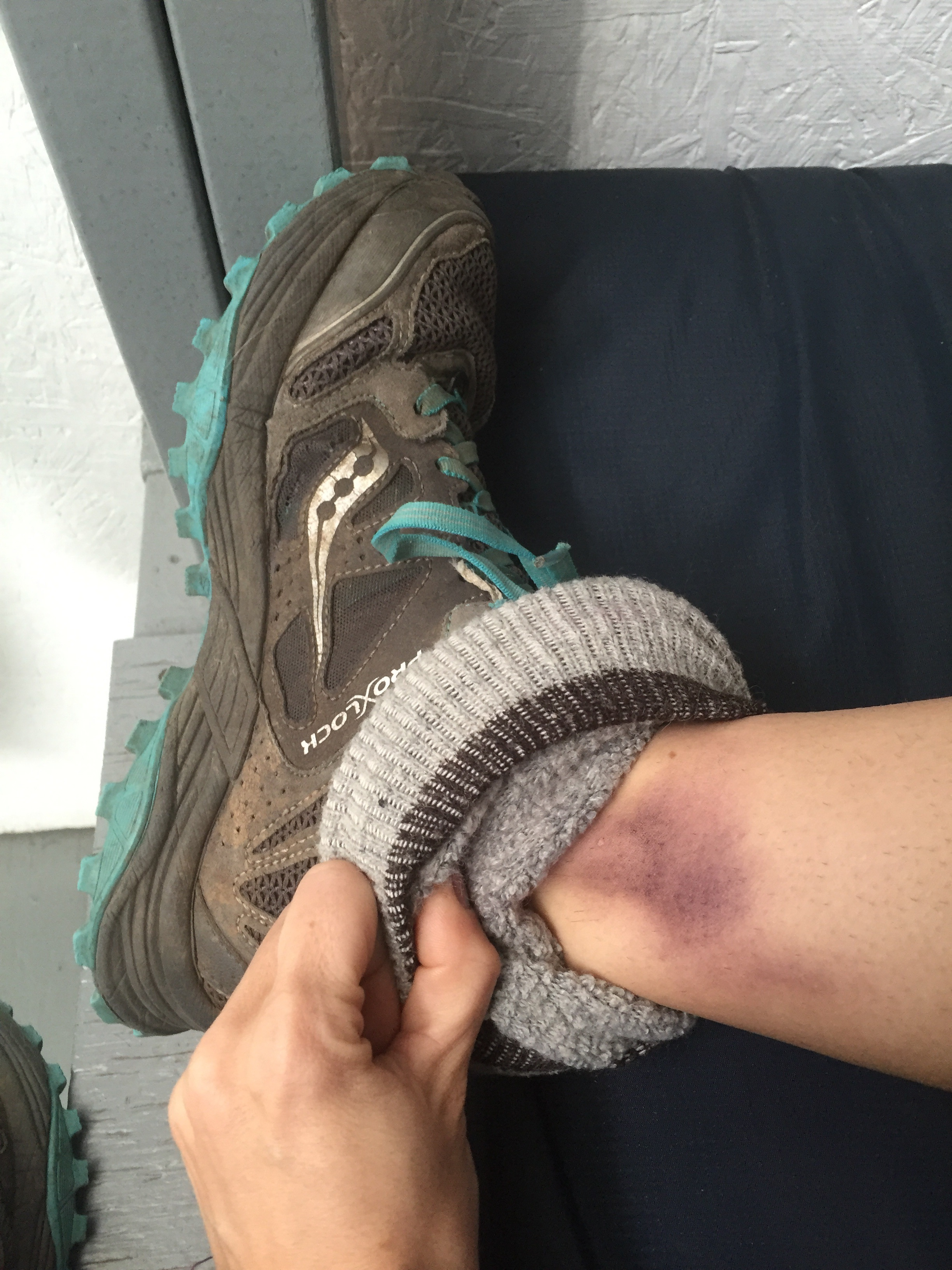 Just another day at WFR training - a badly bruised ankle indicating a sprain.