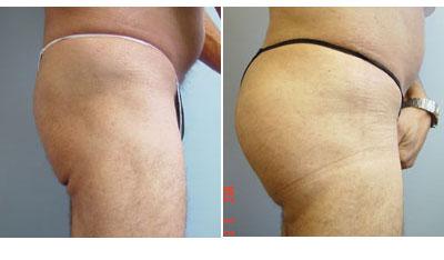 chugay-buttockimplants3.jpg