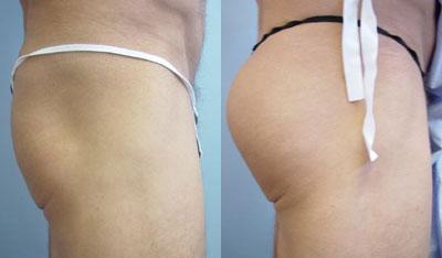 chugay-buttockimplants5.jpg