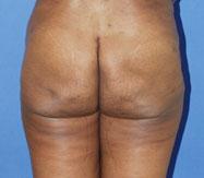 gershenbaum-buttock-post3.jpg
