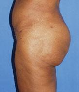 gershenbaum-buttock-post4.jpg