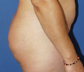 gershenbaum-buttock-post5.jpg