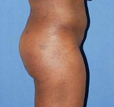 gershenbaum-buttock-post6.jpg