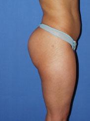 gershenbaum-buttock-post7a.jpg