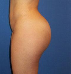 gershenbaum-buttock-post8a.jpg